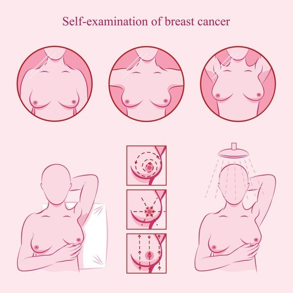 Self-examination to detect breast cancer